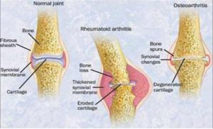 arthritis treatment - acupuncture